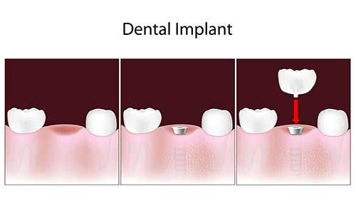 dental implants in Old Saybrook