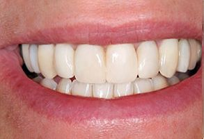 Before and After Dental Implants in Old Saybrook