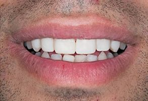 Before and After Teeth Whitening in Old Saybrook