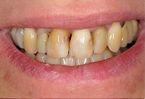 Old Saybrook Before and After Dental Implants