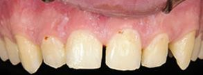 Before and After Dental Fillings 06475